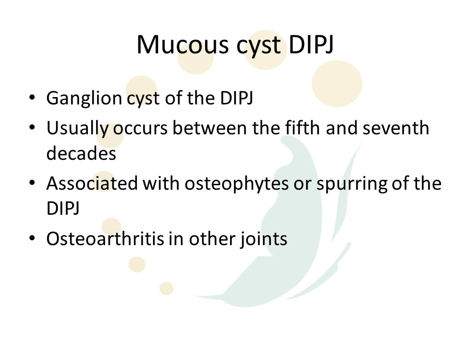 Ganglion/Mucous cyst Single or multiloculated cyst which appears smooth, white & translucent Wall is made up of compressed collagen fibres and is sparsely lined with flattened cells without evidence of an epithelial or synovial lining Mucin-filled clefts from the capsular attachment of the main cyst interconnect with the adjacent underlying joint via tortuous continuous ducts Stroma may show tightly packed collagen fibres or sparsely cellular areas with broken fibres and mucin-filled intercellular & extracellular lakes No inflammatory reaction or mitotic activity has been noted
