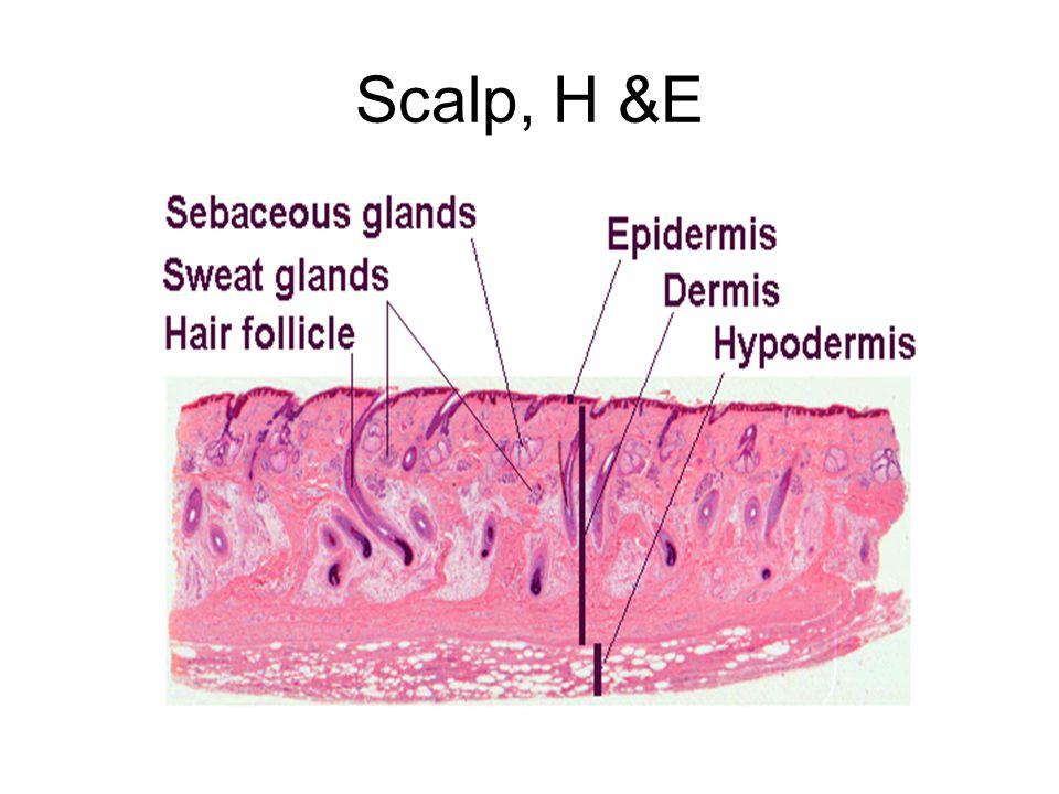 Scalp, H &E