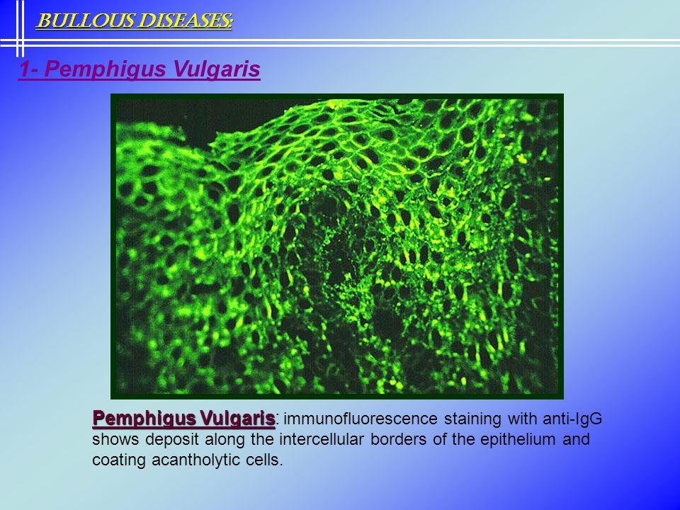 1- Pemphigus Vulgaris Bullous Diseases: Pemphigus Vulgaris Pemphigus Vulgaris: immunofluorescence staining with anti-IgG shows deposit along the inter