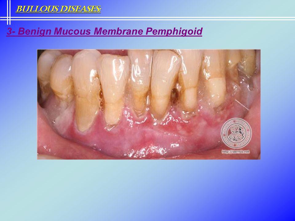 3- Benign Mucous Membrane Pemphigoid