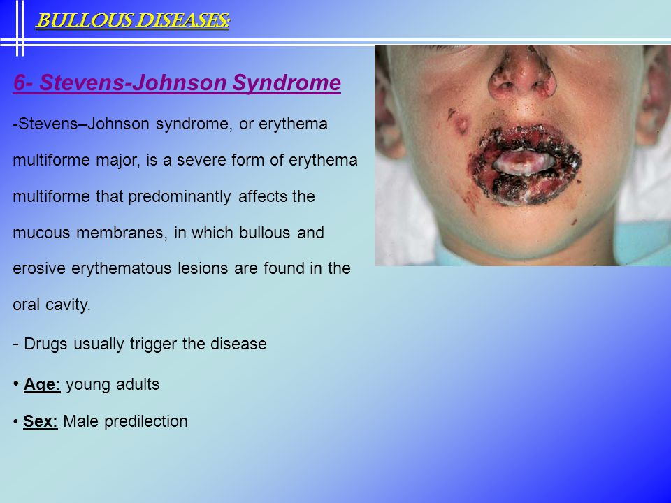 6- Stevens-Johnson Syndrome -Stevens–Johnson syndrome, or erythema multiforme major, is a severe form of erythema multiforme that predominantly affect