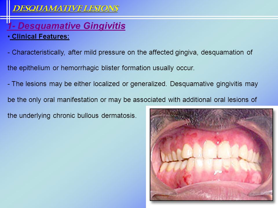 Clinical Features: - Characteristically, after mild pressure on the affected gingiva, desquamation of the epithelium or hemorrhagic blister formation