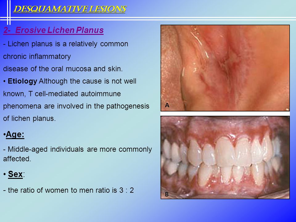 2- Erosive Lichen Planus - Lichen planus is a relatively common chronic inflammatory disease of the oral mucosa and skin. Etiology Although the cause