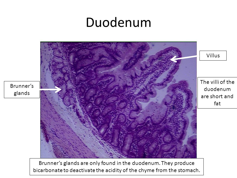 Duodenum Villus Brunner's glands Brunner's glands are only found in the duodenum.