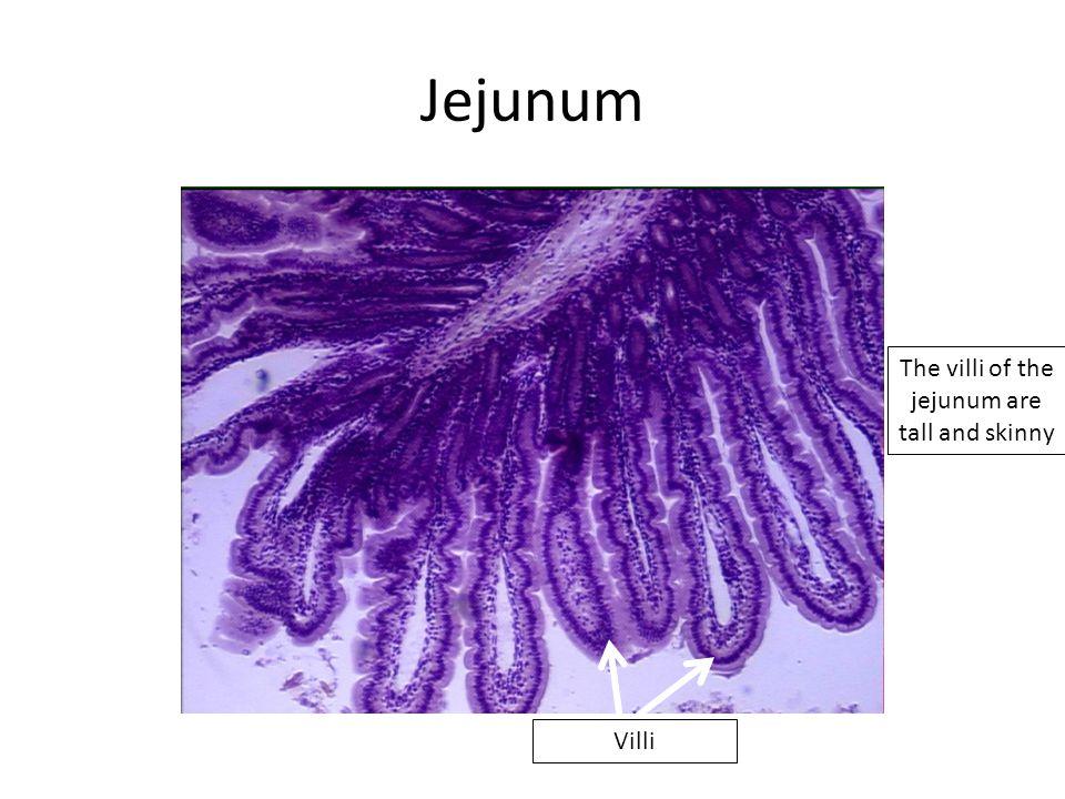 Jejunum Villi The villi of the jejunum are tall and skinny