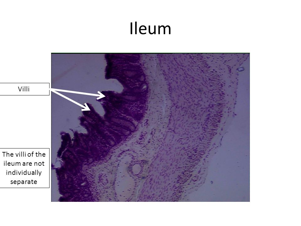 Ileum The villi of the ileum are not individually separate Villi