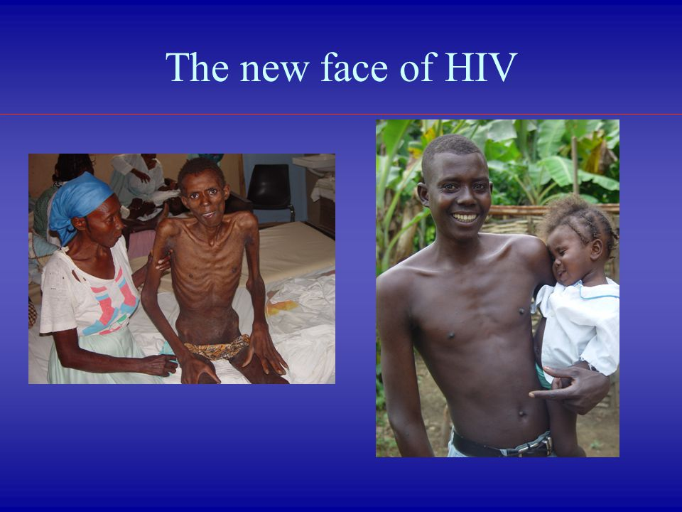 The new face of HIV