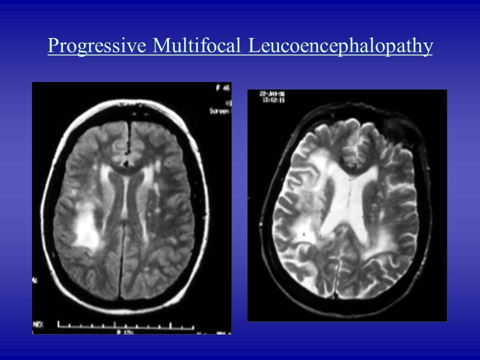 Progressive Multifocal Leucoencephalopathy