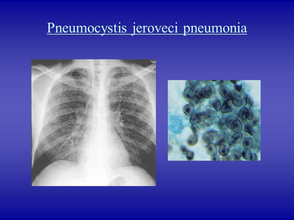 Pneumocystis jeroveci pneumonia