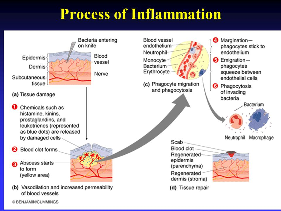 Process of Inflammation