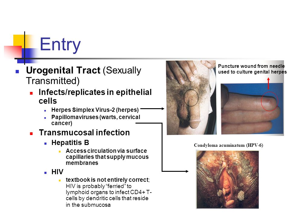 Transmission/Propagation Persistent Infections Can persist in small populations HIV, HBV, VZV