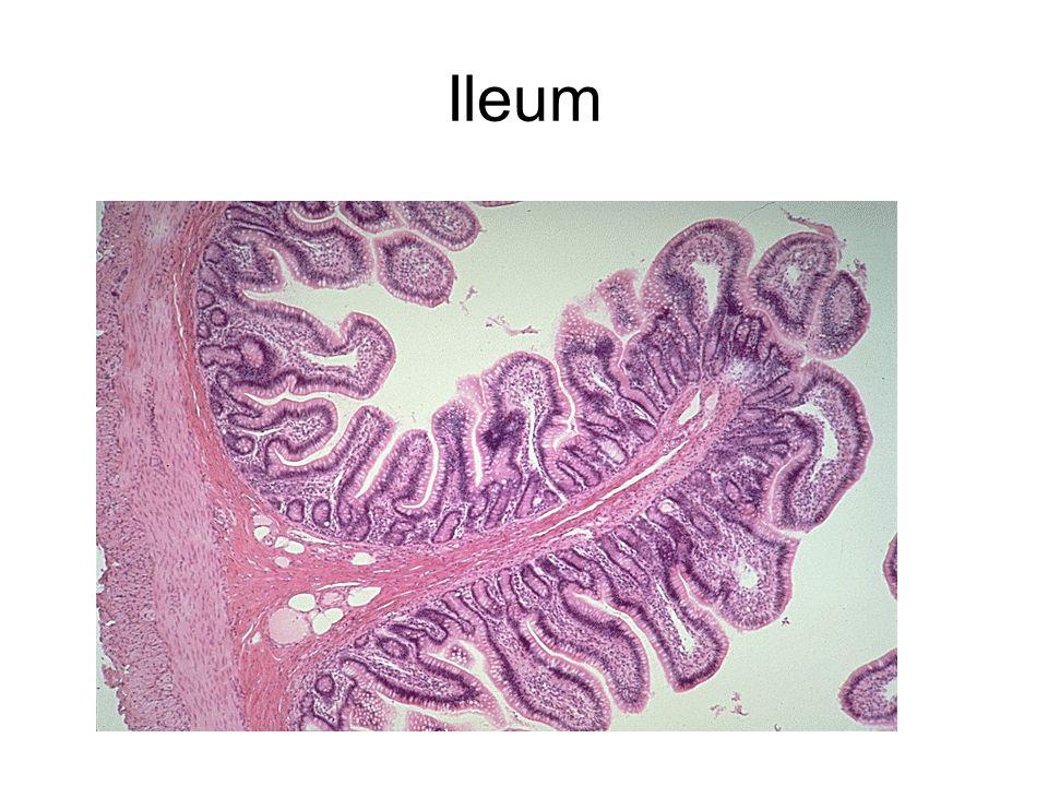 Large Intestine Large intestine- Sketch the large intestine.
