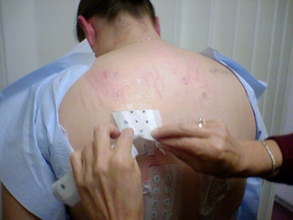 Latex allergy l Diagnosis - skin test - specific IgE in serum l Solution - hypoallergenic products (vinyl gloves etc.)