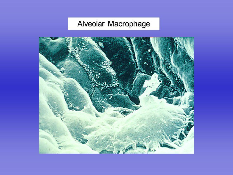 Alveolar Macrophage