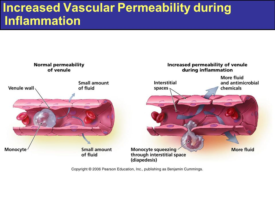 Increased Vascular Permeability during Inflammation