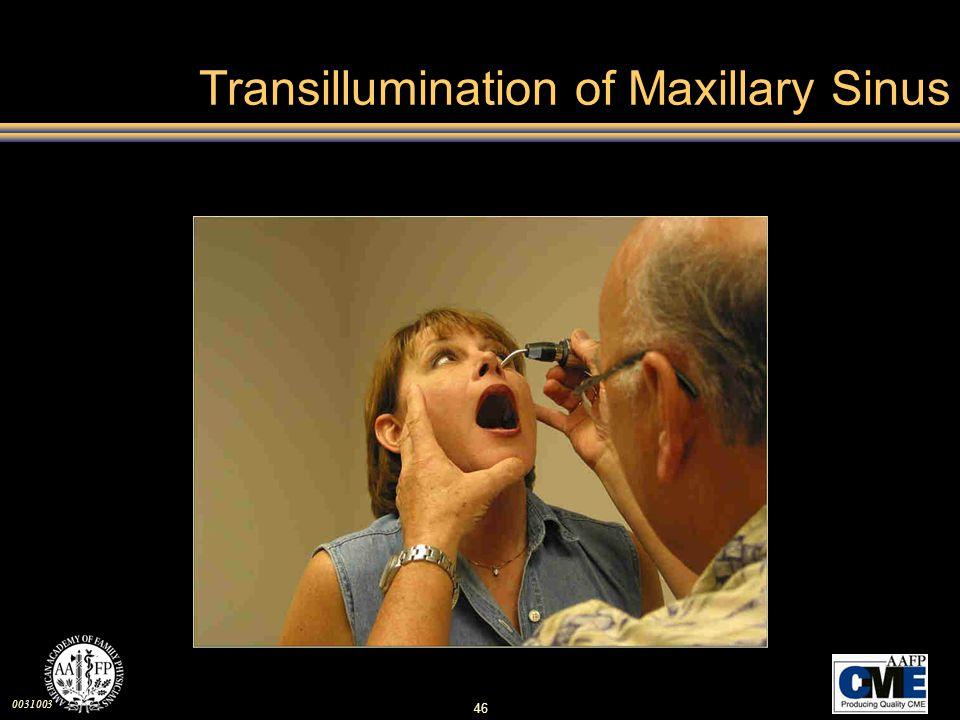 0031003 46 Transillumination of Maxillary Sinus
