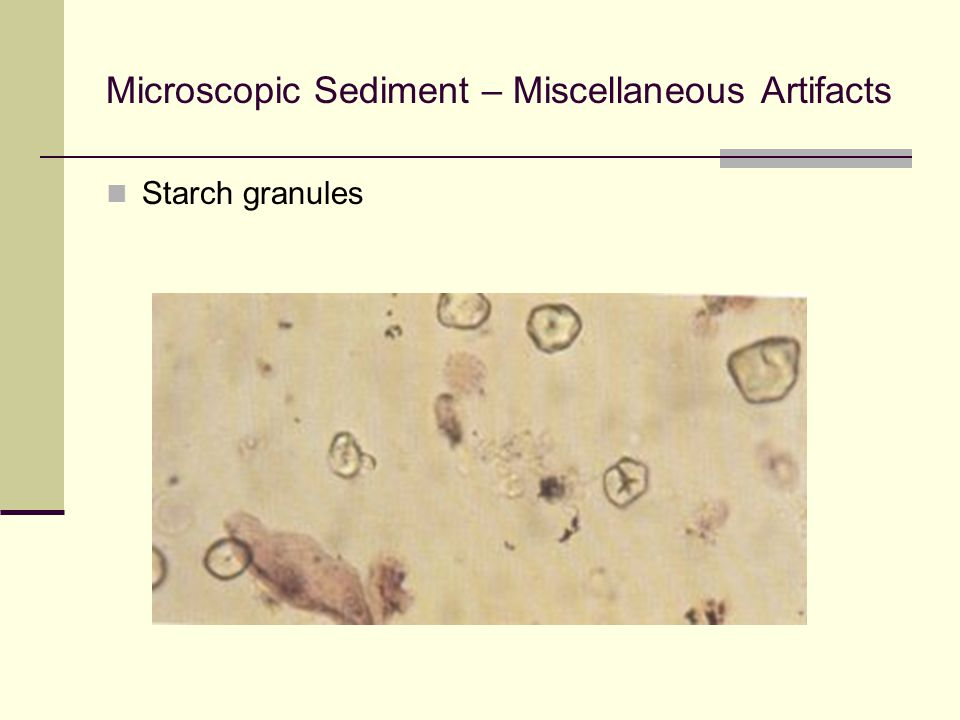 Microscopic Sediment – Miscellaneous Artifacts Starch granules