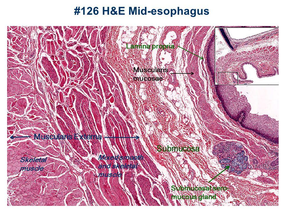 #126 Esophagus Also #153 Muscularis mucose Submucosal gland