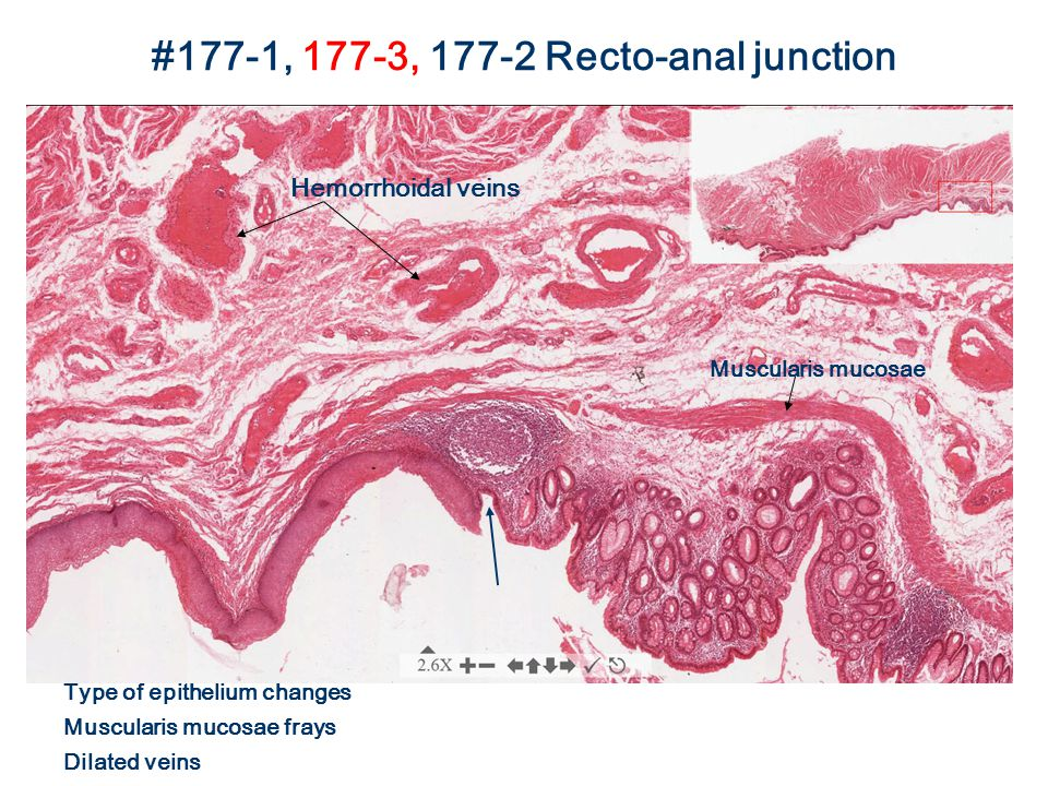 #177-1, 177-3, 177-2 Recto-anal junction Hemorrhoidal veins Muscularis mucosae Type of epithelium changes Muscularis mucosae frays Dilated veins