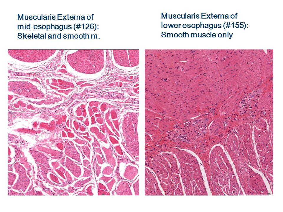 #29 Small Intestine Mesentery (ct + epithelium) Submucosa (connective tissue) Mucosa (epithelium + lamina propria) Muscularis Externa (smooth muscle) Lumen Muscularis mucosae