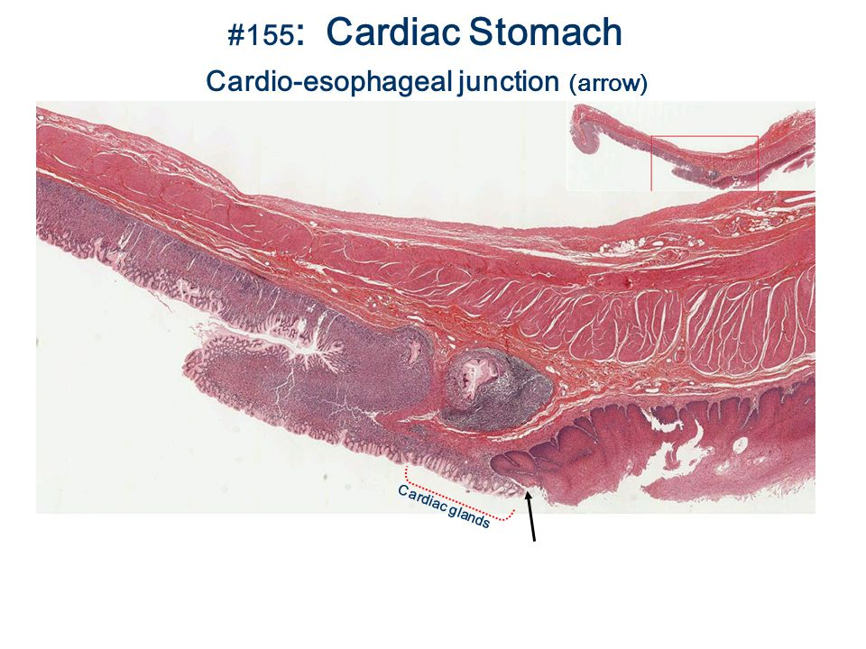 #155 : Cardiac Stomach Cardio-esophageal junction (arrow) Cardiac glands