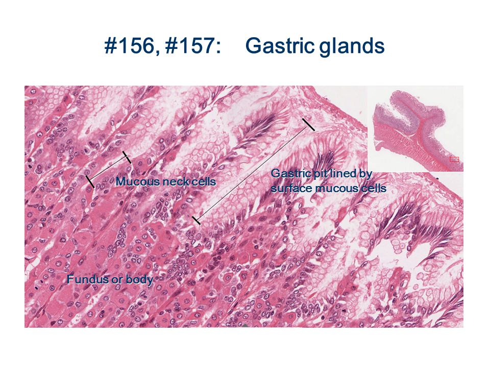 #156, #157: Gastric glands Gastric pit lined by surface mucous cells Mucous neck cells Fundus or body