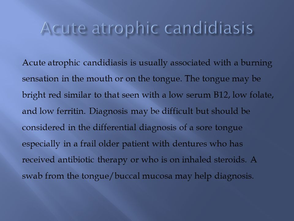 Acute atrophic candidiasis is usually associated with a burning sensation in the mouth or on the tongue.