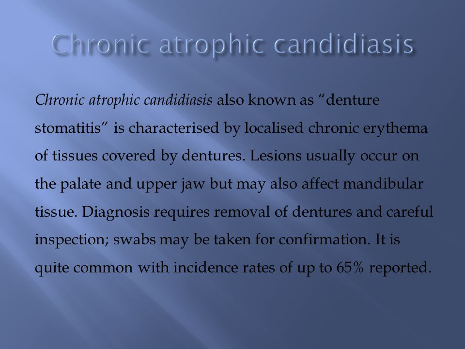 "Chronic atrophic candidiasis also known as ""denture stomatitis"" is characterised by localised chronic erythema of tissues covered by dentures. Lesions"