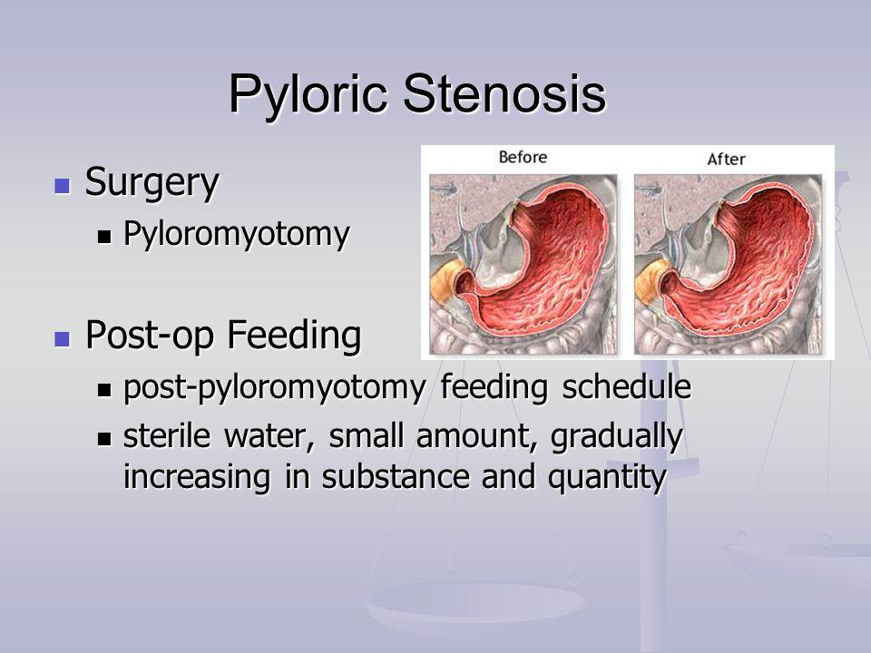 Pyloric Stenosis Surgery Surgery Pyloromyotomy Pyloromyotomy Post-op Feeding Post-op Feeding post-pyloromyotomy feeding schedule post-pyloromyotomy fe