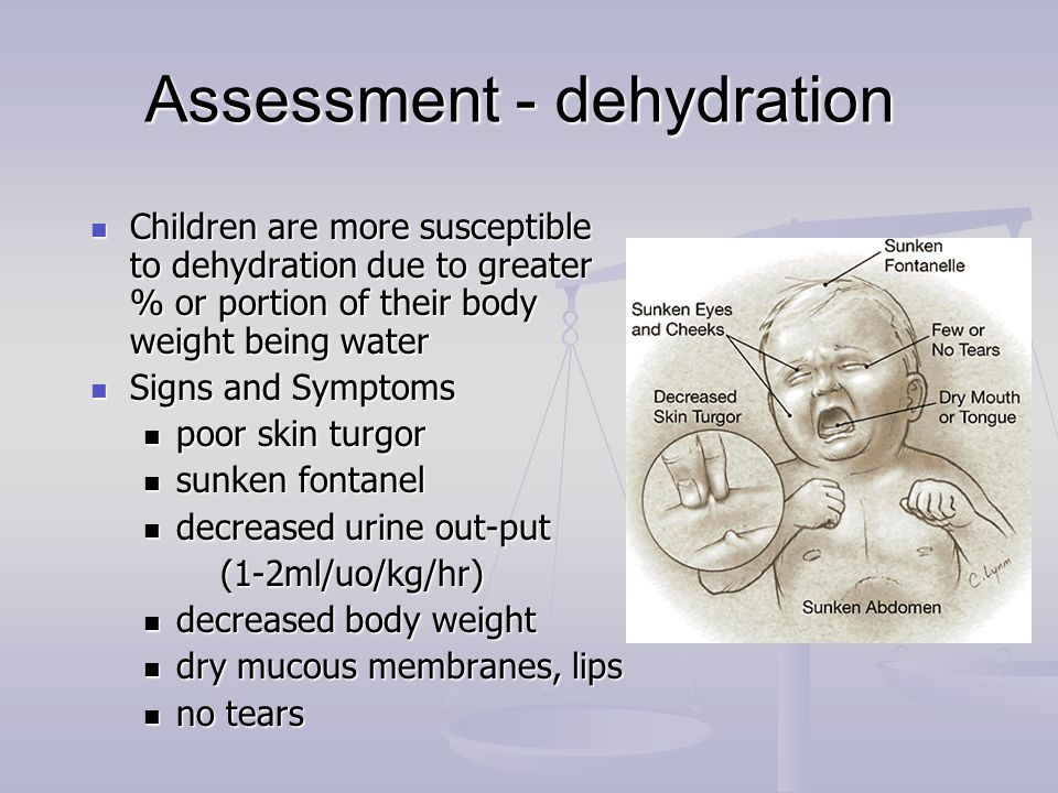 Assessment - dehydration Children are more susceptible to dehydration due to greater % or portion of their body weight being water Children are more s