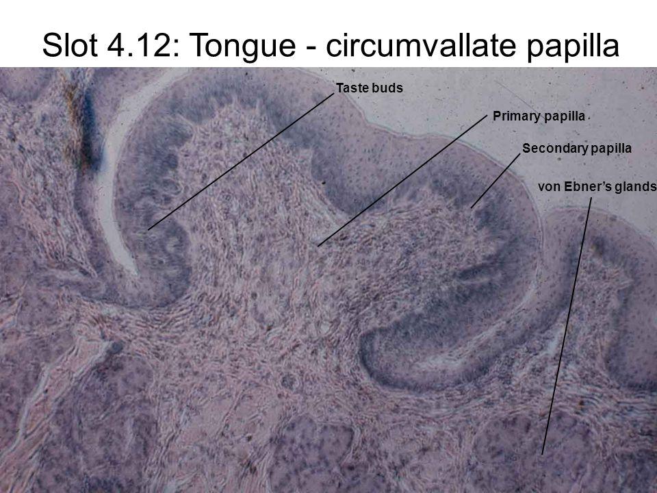 Slot 4.12: Tongue - circumvallate papilla Primary papilla Secondary papilla Taste buds von Ebner's glands