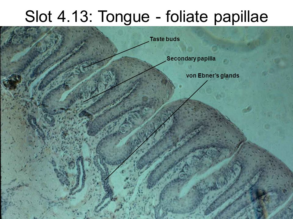 Slot 4.13: Tongue - foliate papillae Secondary papilla Taste buds von Ebner's glands