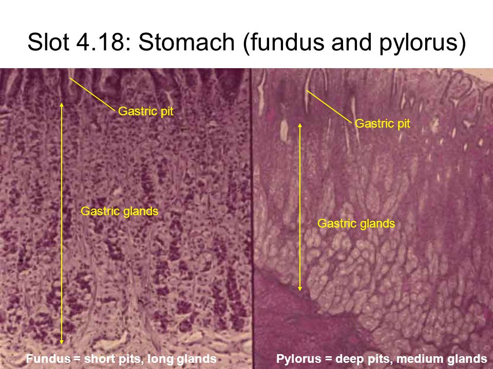 Slot 4.18: Stomach (fundus and pylorus) Gastric pit Gastric glands Gastric pit Gastric glands Fundus = short pits, long glandsPylorus = deep pits, medium glands