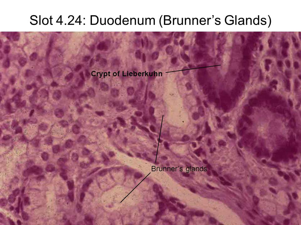 Slot 4.24: Duodenum (Brunner's Glands) Brunner's glands Crypt of Lieberkuhn