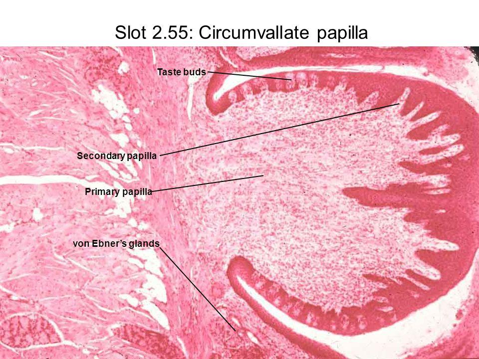 Slot 2.55: Circumvallate papilla Primary papilla Secondary papilla Taste buds von Ebner's glands