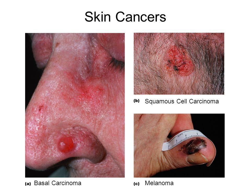 Skin Cancers Basal Carcinoma Squamous Cell Carcinoma Melanoma