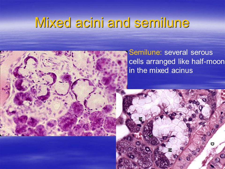 Mixed acini and semilune Semilune: several serous cells arranged like half-moon in the mixed acinus