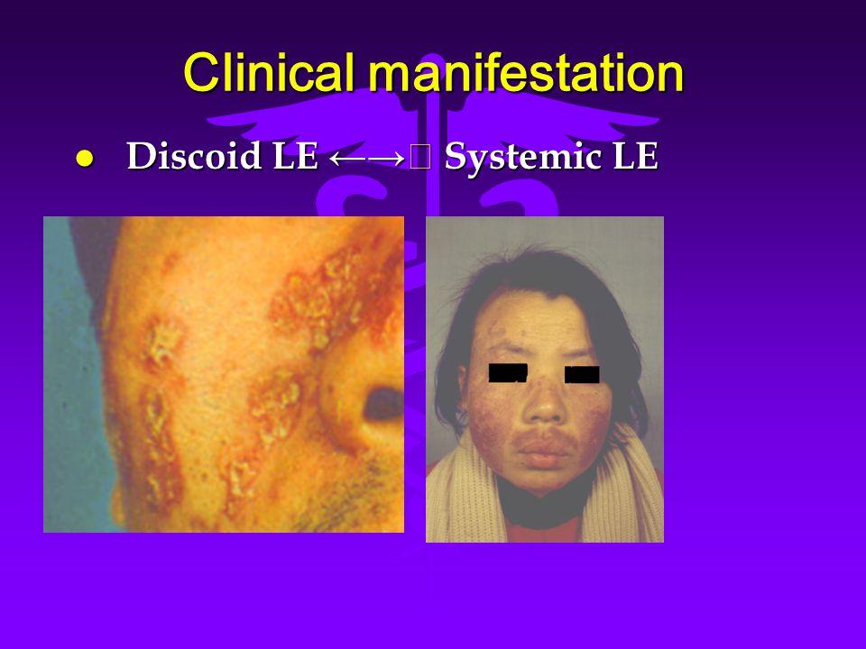 Clinical manifestation l Discoid LE ←→ ★ Systemic LE