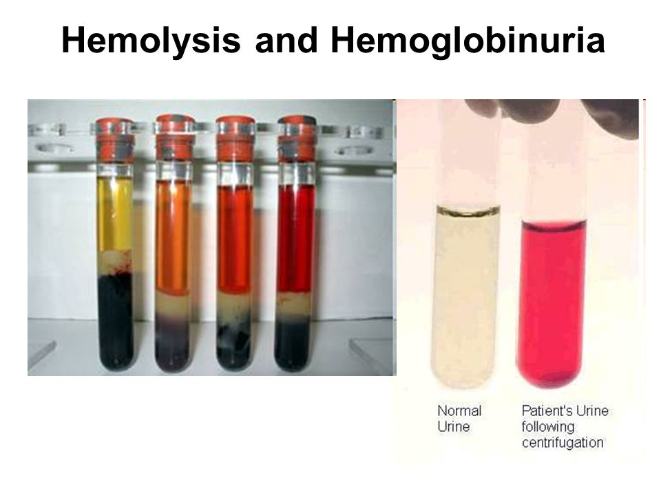 Hemolysis and Hemoglobinuria