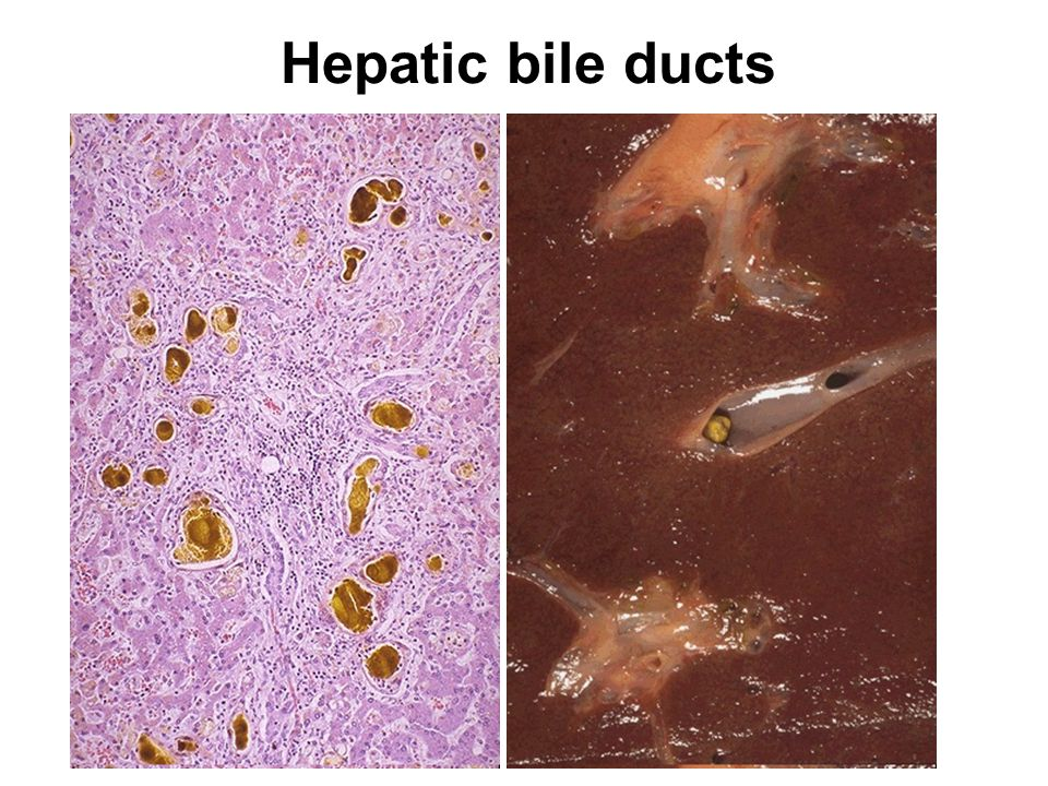 Hepatic bile ducts