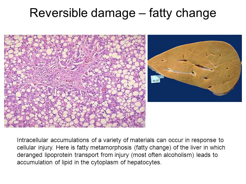 Reversible damage – fatty change Intracellular accumulations of a variety of materials can occur in response to cellular injury. Here is fatty metamor
