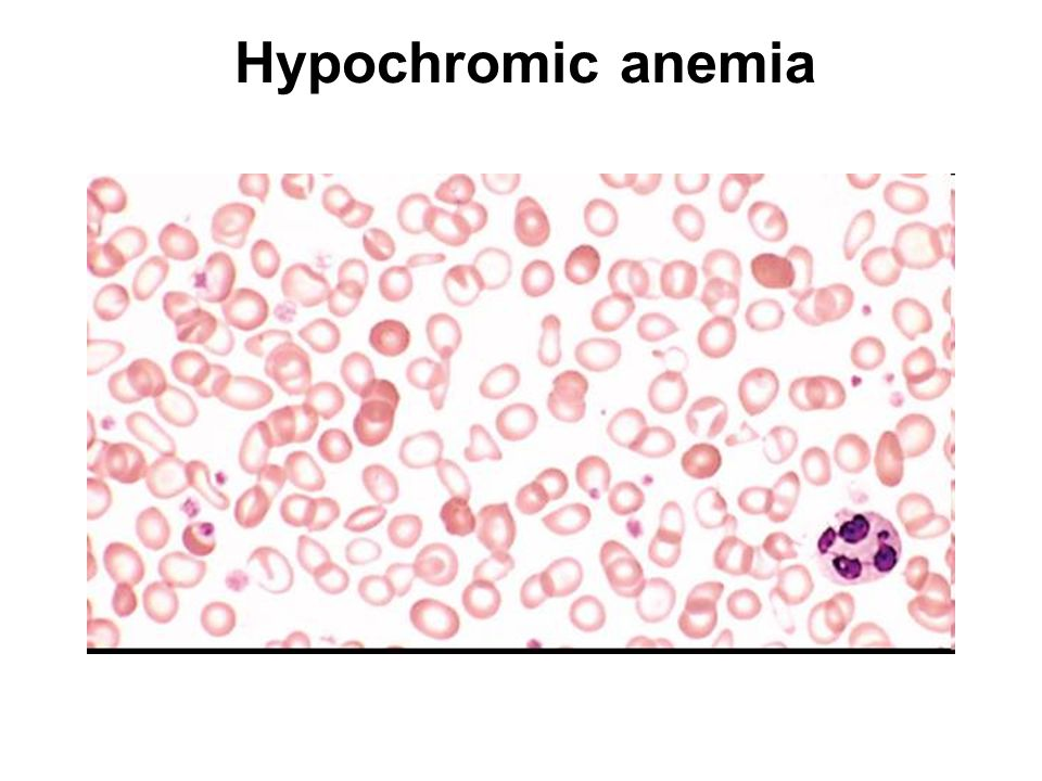 Deoxyhemoglobin Reduced hemoglobin, HHb is dark purple-red Mucous membranes and nail beds look blue (cyan) Presence of HHb is called cyanosis  Poor systemic circulation due to shock, heart disease  Poor oxygenation of Hb due to low oxygen tension, pneumonia, COPD Acrocyanosis is limited to distal extremities (acro = extreme)  Cold-induced vasular constriction  Reynaud's syndrome Primary may be instigated by extreme temperature or emotional stress Secondary to other disorders, CREST syndrome –calcinosis, Raynaud s phenomenon, esophageal dysmotility, sclerodactyly, and telangiectasia