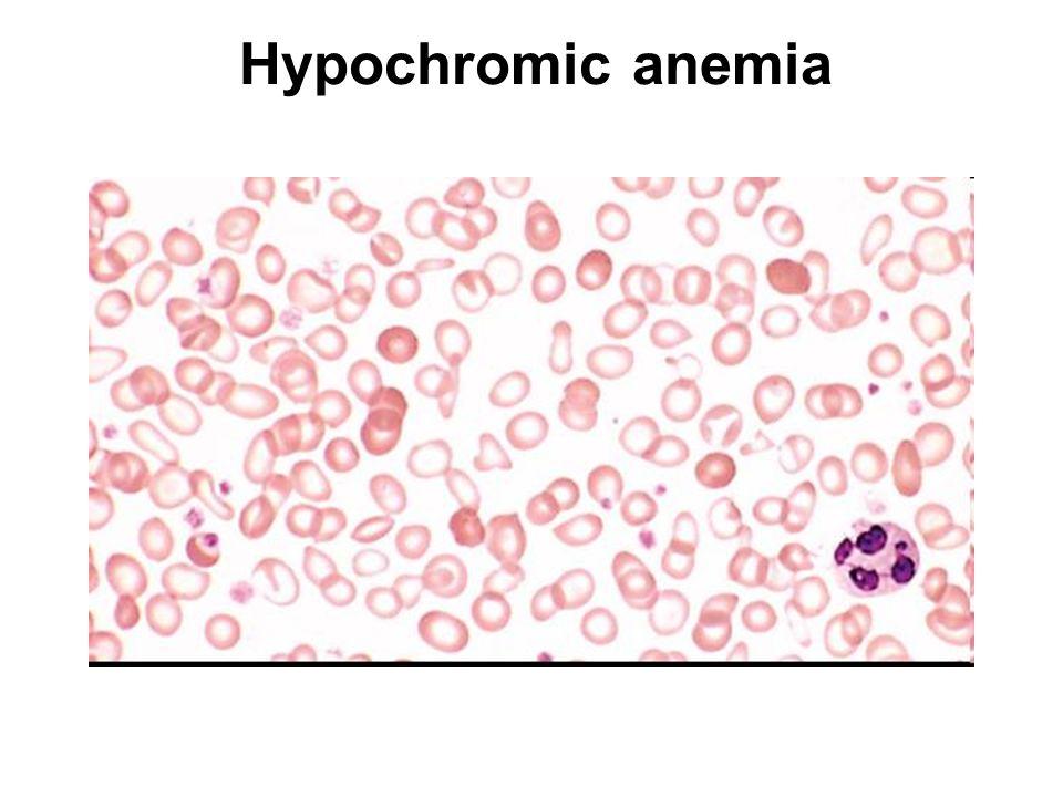 Hypochromic anemia