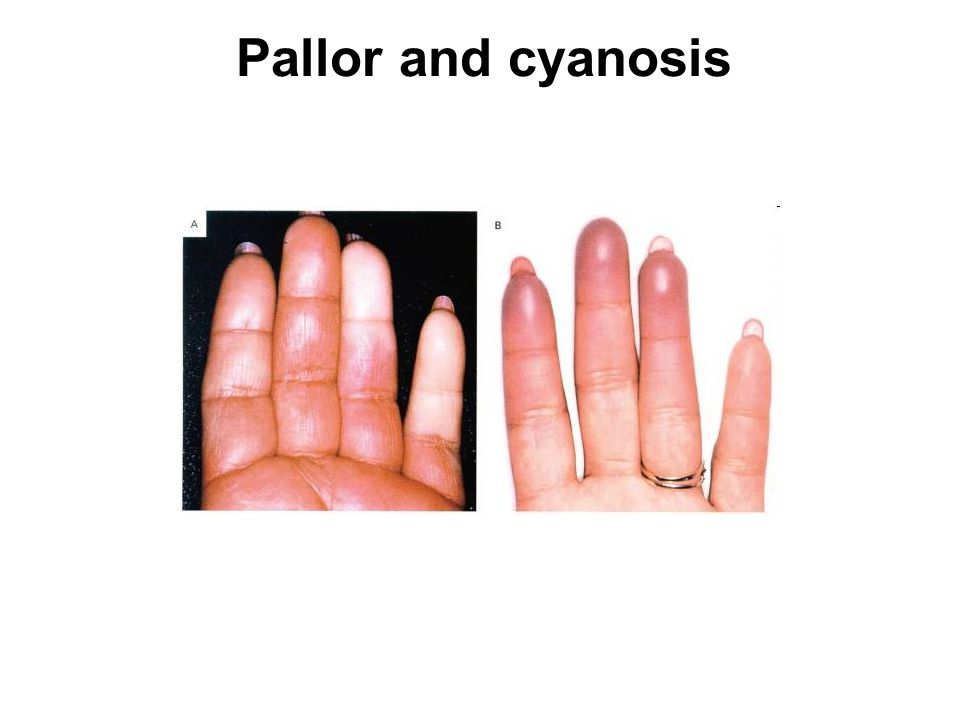 Pallor and cyanosis