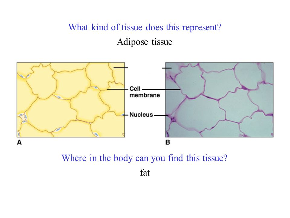 What kind of tissue does this represent? Where in the body can you find this tissue? Adipose tissue fat