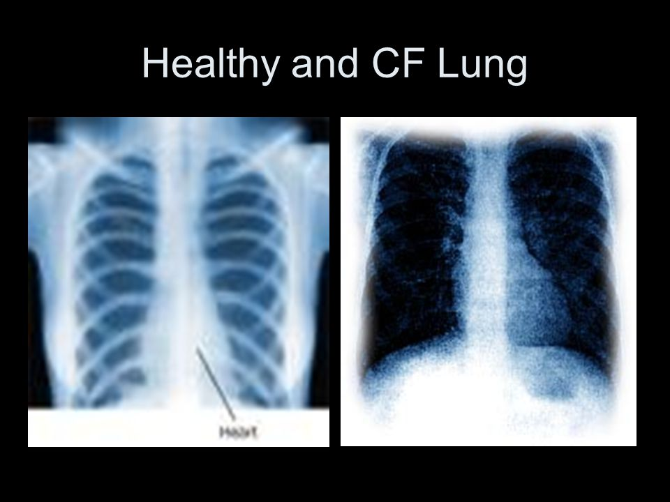 Healthy and CF Lung