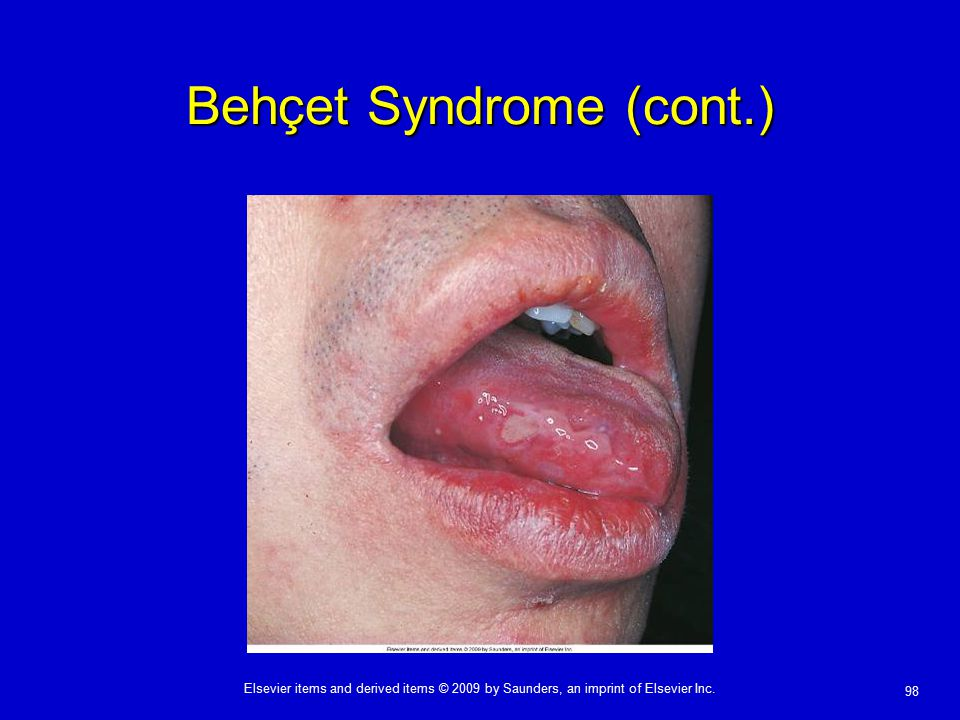 98 Elsevier items and derived items © 2009 by Saunders, an imprint of Elsevier Inc. Behçet Syndrome (cont.)