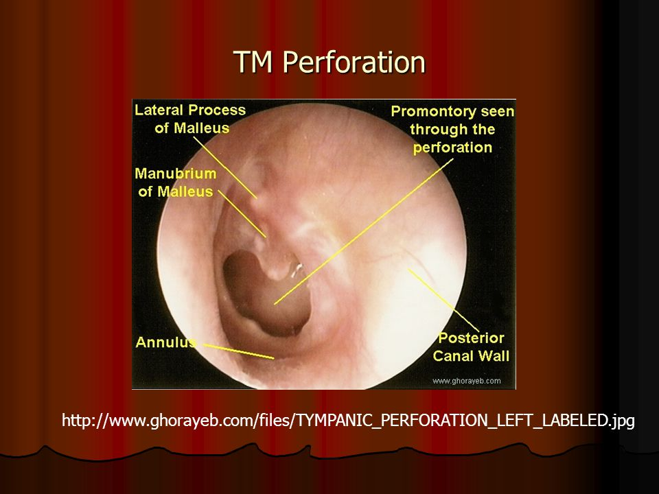 TM Perforation http://www.ghorayeb.com/files/TYMPANIC_PERFORATION_LEFT_LABELED.jpg