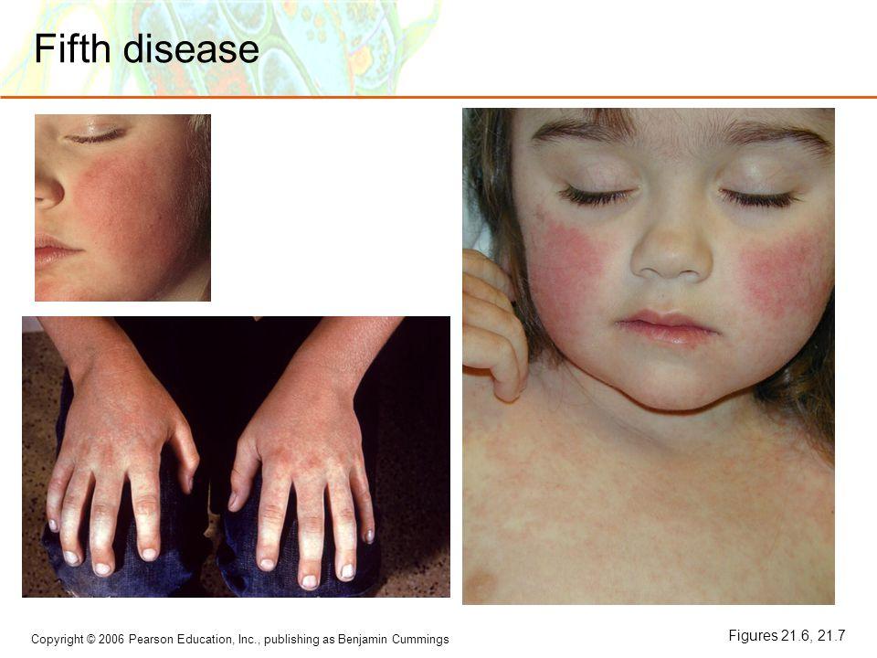 Copyright © 2006 Pearson Education, Inc., publishing as Benjamin Cummings Fifth disease Figures 21.6, 21.7