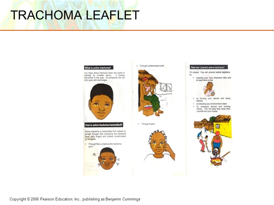 Copyright © 2006 Pearson Education, Inc., publishing as Benjamin Cummings TRACHOMA LEAFLET
